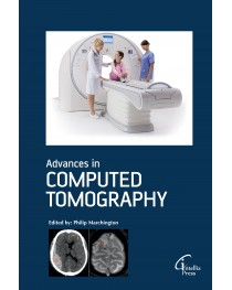 Advances in Computed Tomography